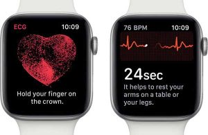 心電図機能[2019 新作 Apple Watch 5]